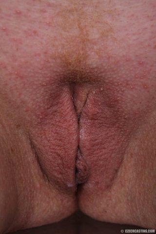 freckled mom finally gets